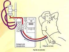 Гемодиализ, Запорожье, аппарат, схема. нехватка