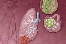 В Запорожье вспышка пневмонии