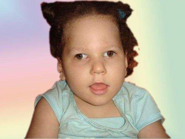 Маша Лущенко, 5 лет, Запорожье, ДЦП, лечится по методу Глена Домана