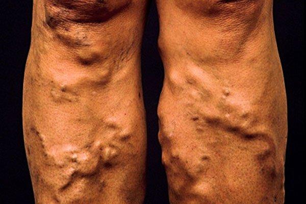 Активный образ жизни поможет избежать варикоза