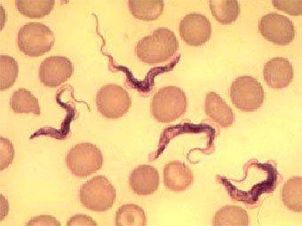 паразиты во рту человека видео