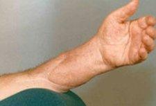 Запорожские хирурги пришили пациенту отрезанную руку
