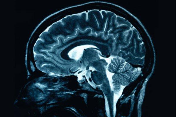 Сканирование мозга может показать аутизм