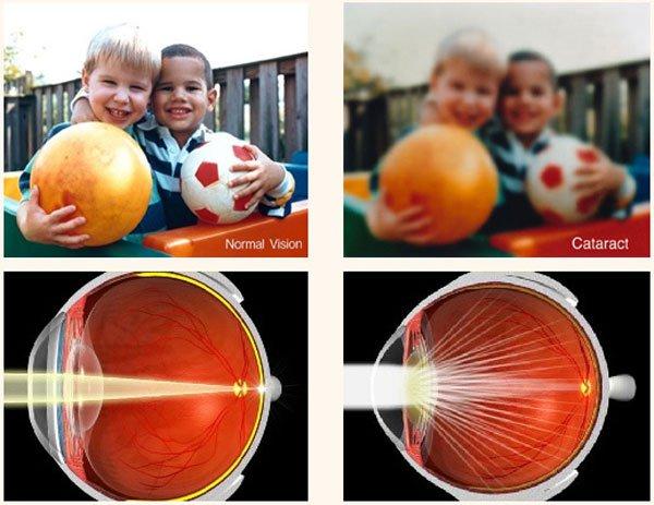 Как происходит амбулаторное удаление катаракты?