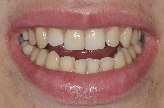 Восстановление зубов винирами. Основные моменты