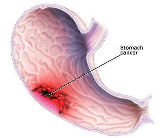 Лапароскопическое шунтирование желудка